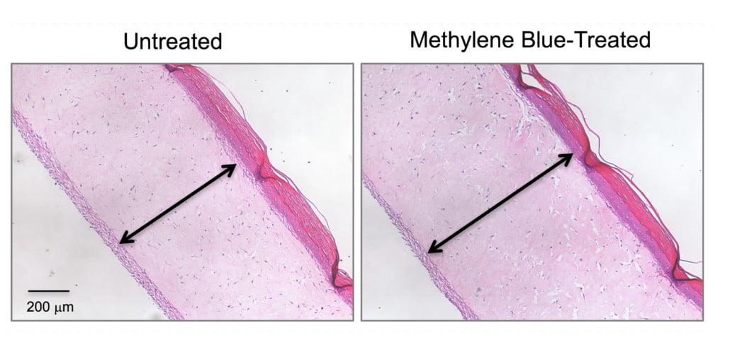 Błękit metylenowy